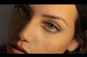 cosmetic-fillers-birmingham