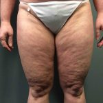 Liposuction Case 7 - Front Legs Before