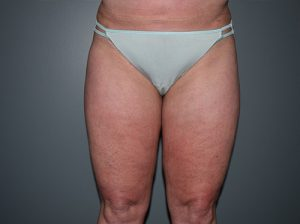 Liposuction Case 7 - Front Legs After