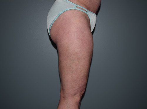 Liposuction Case 7 - Right Legs After